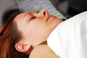 Gellis Facial Rejuvenation Acupuncture
