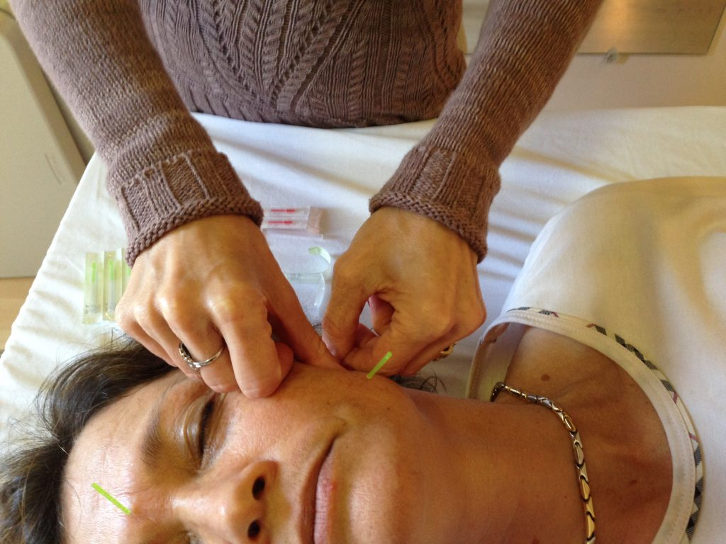 Michelle Gellis Acupuncture Treatment for Facial Pain and Paralysis
