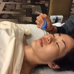 Facial Cupping training demonstration