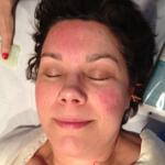 Facial Rejuvenation Acupuncture for Rosacea