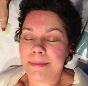 Rosacea treated on right side of face