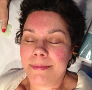 Acupuncture rosacea archives facial acupuncture classes rosacea treated on right side of face solutioingenieria Images