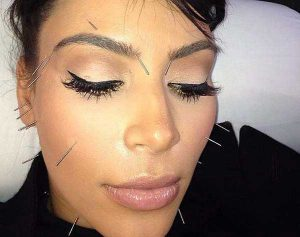Kardashian Cosmetic Acupuncture