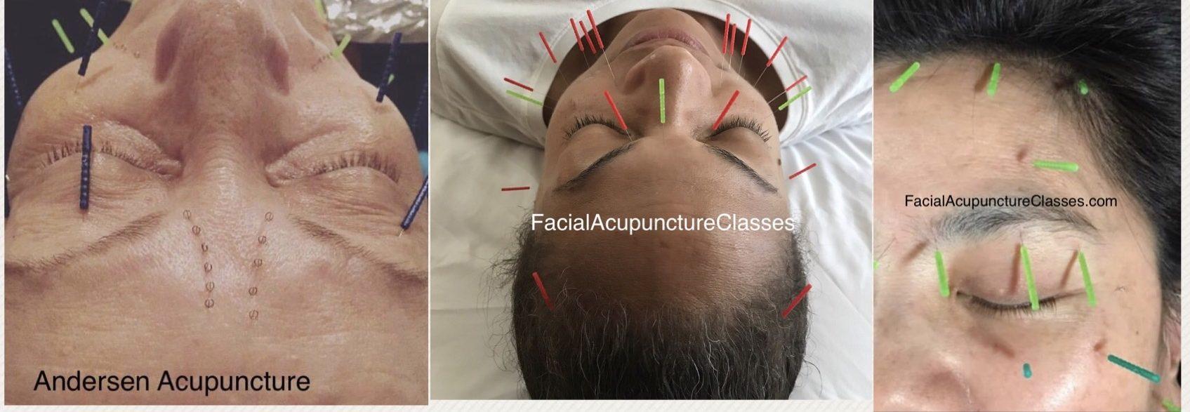 Blog - Facial Acupuncture CEU Classes