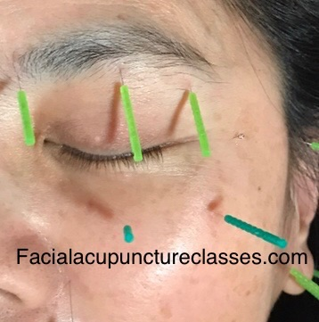 cosmetic acupuncture of eyelid