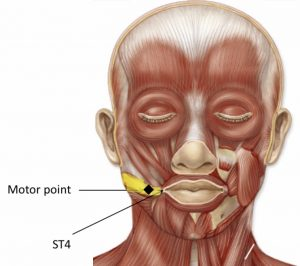 facial motor points