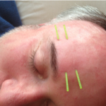 Demonstrating submuscular needling techniques during the Advanced Facial Acupuncture Class