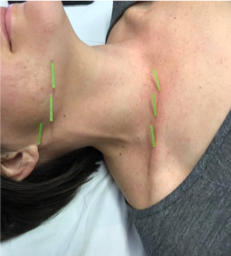 Facial Acupuncture for Neck Gellis