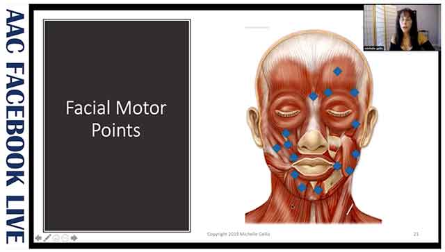 Use of facial motor points in cosmetic acupuncture