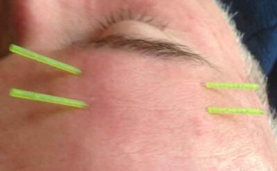 Treating neuromuscular facial conditions with acupuncture