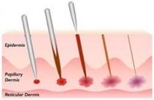 microneedling collagen michelle gellis facial acupuncture classes